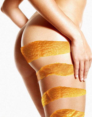 Reduce la celulitis con remedios naturales 2
