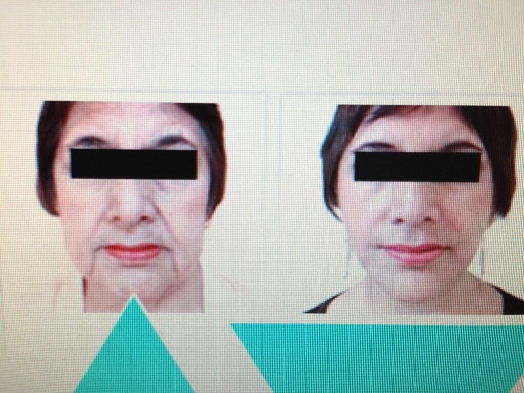 Tacha: NUEVO Lifting Biológico contra la flacidez y el descolgamiento facial 2