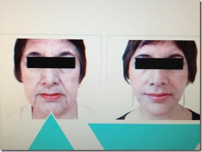 Tacha: NUEVO Lifting Biológico contra la flacidez y el descolgamiento facial